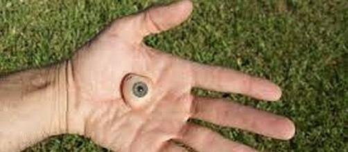 Divers rescued man's prosthetic eye from pool - Flickr.com