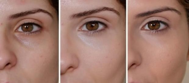 Saiba como disfarçar as olheiras (Foto: Reprodução)