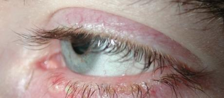 Amazing Home Remedies For Blepharitis | Photo via Esther Max, Flickr
