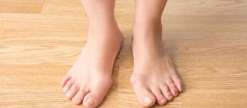 How To Treat Bunions Naturally Without Surgery - Guillaume Paumier via wikimedia