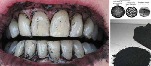 How To Naturally Whiten Your Teeth With Activated Charcoal - dailyhealthpost.com