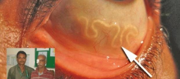 Verme de 13 centímetros dentro do olho de um humano