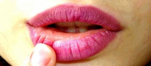 El herpes está causado por un virus, por lo que los antibióticos no tienen ningún efecto sobre él