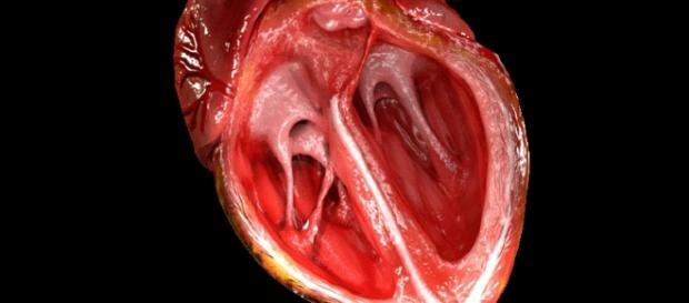 Heart valve - Wikipedia - wikipedia.org creative commons