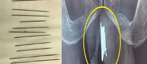 Homem tem 15 agulhas retirada do órgão genital