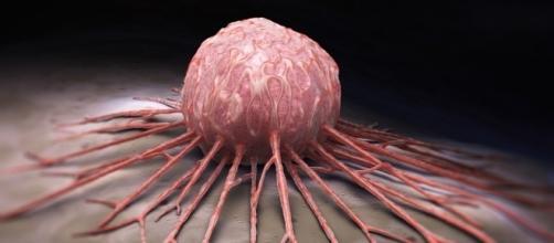 El secreto sobre el cáncer que ha sido revelado - Vida Lúcida - lavidalucida.com