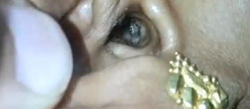 A aranha dentro da orelha da paciente - Google.com