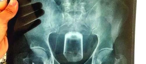 Copo de vidro quebra dentro do corpo e italiano precisa de cirurgia para retirá-lo (Foto: Reprodução)