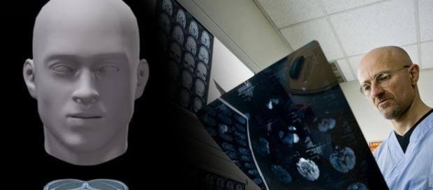 Transplante de cabeça humana deverá ser realizado ainda este ano