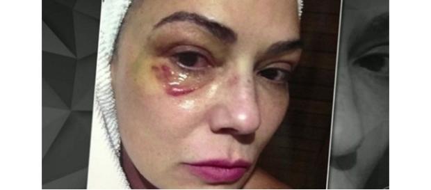 Empresário foi condenado a 1 ano de prisão por lesão corporal contra Luiza Brunet