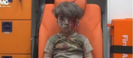 Omran Daqneesh é uma das imagens fortes da guerra de Alepo