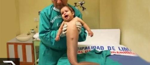 Crianças que nasceram com doenças raras