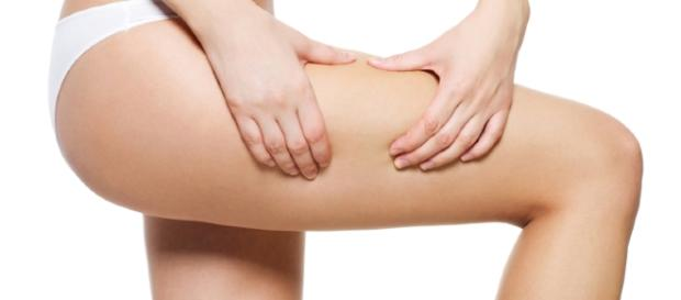 How to Get Rid of Cellulite | StyleCaster - stylecaster.com