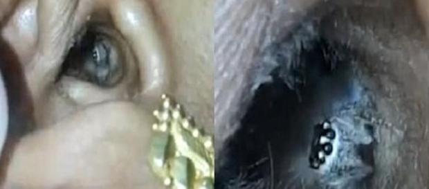 Uma aranha é encontrada ainda viva no ouvido de uma mulher na Índia