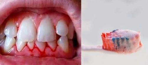 Sua gengiva sangra durante a escovação? Seu coração pode estar em risco!