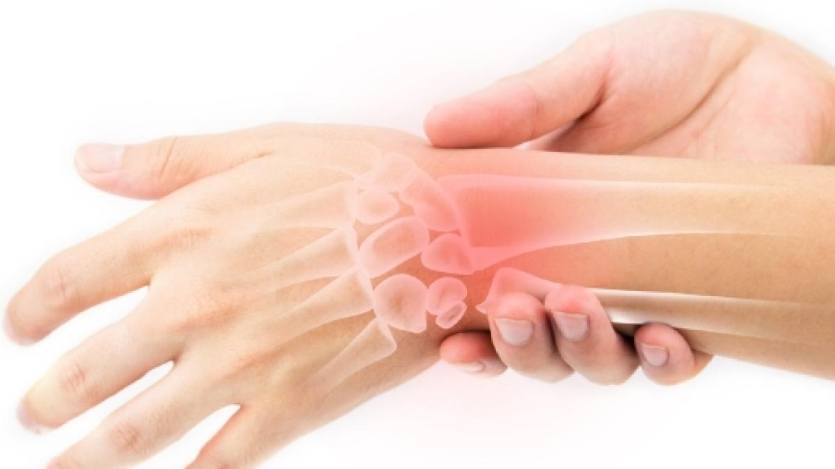 Un rimedio cinese a base di erbe efficace contro l'artrite
