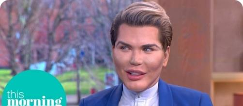 Rodrigo Alves could lose his nose if he has one more rhinoplasty. Photo via This Morning, YouTube.