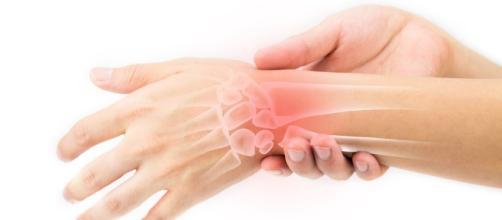 trattamento fisioterapico per l'artrite reumatoide | Pazienti.it - pazienti.it