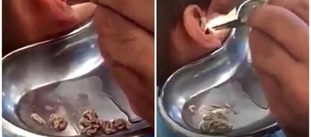 Dezenas de larvas são retiradas de ouvido de criança