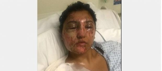 Modelo foi atacada por ácido e espera que as leis sejam endurecidas e as punições mais severas. (Foto internet)