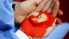 ¿El aborto es cosa de mujeres?