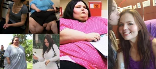 A impressionante história de Christina que pesava 317 quilos e hoje superou a obesidade