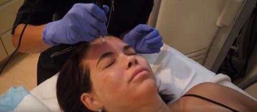 Stimulate collagen growth, improve acne scarring and hyperpigmentation with Microneedling - Image -Rejuvené | YouTube