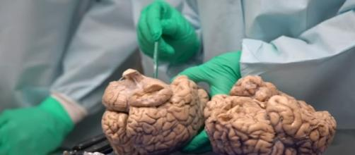 Study: CTE Affects Football Players At All Levels - Image - Associated Press | YouTube