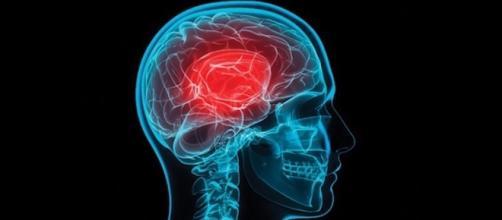 Dr. Heidi Christensen: Concussions from YouTube/CenturaHealth