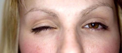 Tremor nas pálpebras pode ser o estresse se manifestando.