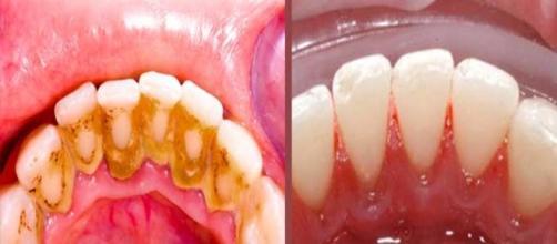 Tártaro é o acúmulo de bactérias nos dentes