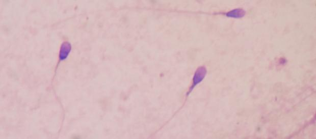 Sperm counts among men in Western nations are reportedly decreasing. - Bobjgalindo/Wikimedia Commons