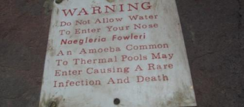 A signage warning pool-goers of the possible presence of brain-eating amoeba (Image Credit: justslm/Flickr)