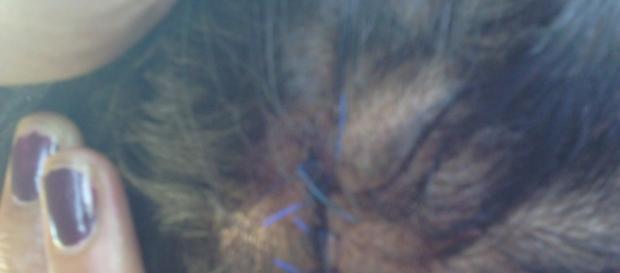 Punti sulla testa della bambina Rom