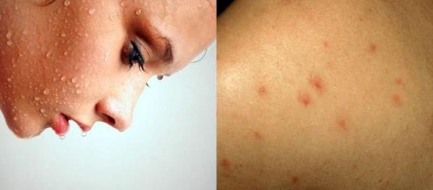 Os sintomas da AIDS incluem perda de peso, febre ou sudorese noturna, fadiga e infecções recorrentes.