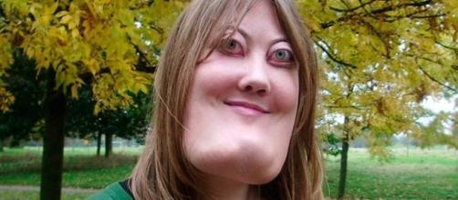 Victoria Wright, portadora de uma deficiência chamada de 'querubismo'
