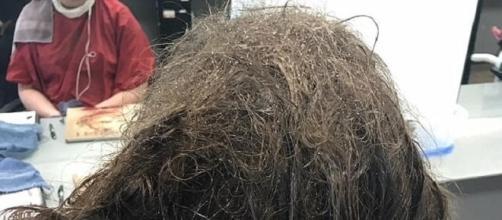 Menina tinha o cabelo nesse estado horrível (Foto: Facebook)