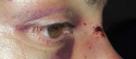 Mulher de ministro acusa marido de agressão