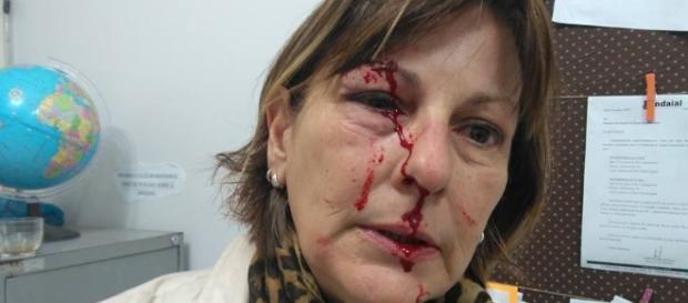 Márcia Friggi foi agredida violentamente por um de seus alunos