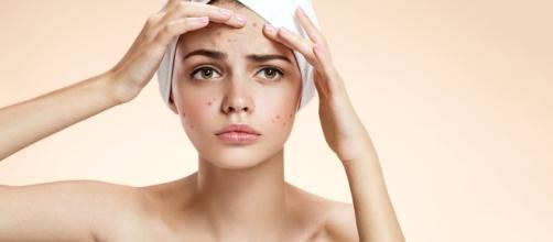19 Best Home Remedies To Get Rid Of Blemishes On Face - stylecraze.com