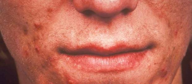 Bactéria da acne pode causar infecções e câncer