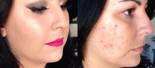 A natureza pode ajudar nos tratamentos contra acne