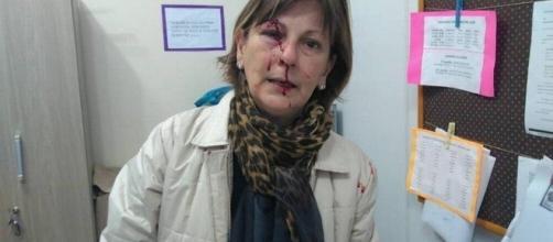Foto após a agressão postada no Facebook