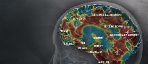 Gli effetti delle metanfetamine sul cervello (http://www.methproject.org/answers/what-does-meth-do-to-your-brain.html#Brain-Damage)