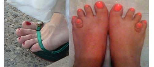 Essas pessoas não devem se orgulhar de seus pés ( Foto - Reprodução )