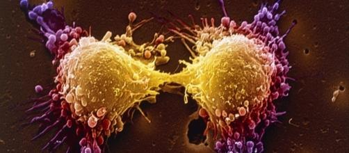 Tumor típico del cáncer de próstata. Fotografía del Wall Street Journal