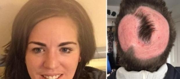Mulher deseja ter cabelo da moda e queima toda a cabeça