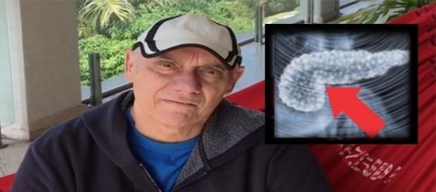 Marcelo Rezende volta a ingerir carboidratos