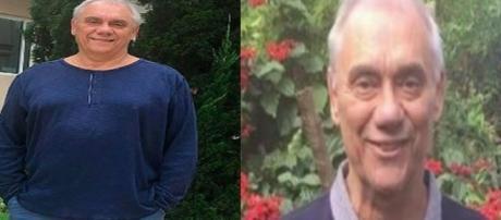 Marcelo Rezende antes e depois de ser acometido pela terrível doença