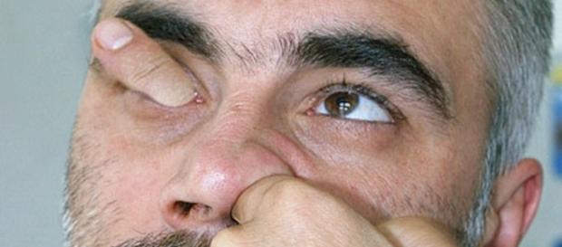 Motivos para nunca mais você meter o dedo no nariz.